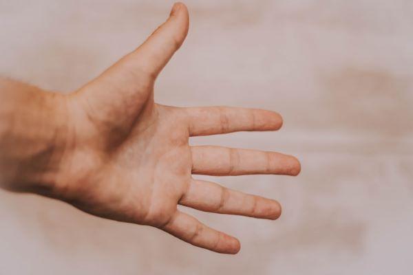 横浜市のエステサロンAYA「手掌多汗症」